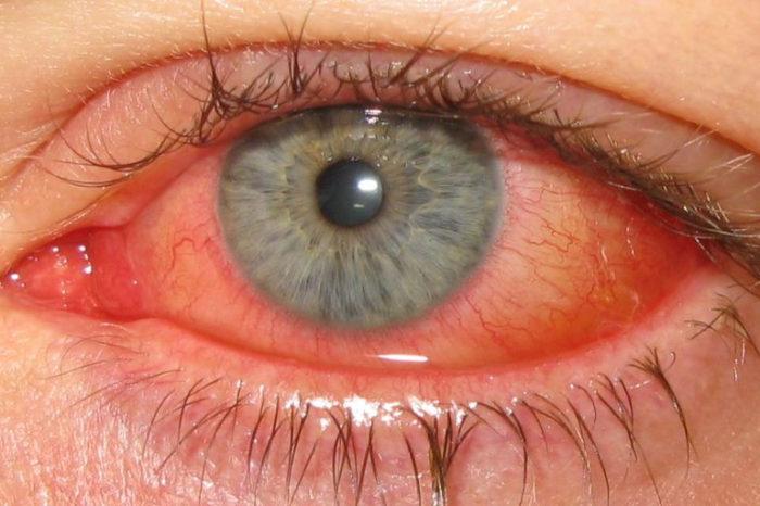 Alteração climática favorece inflamação ocular