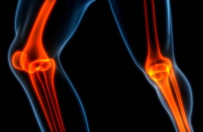 Que dor é essa no meu joelho?